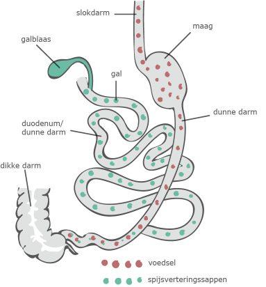 duodenal switch